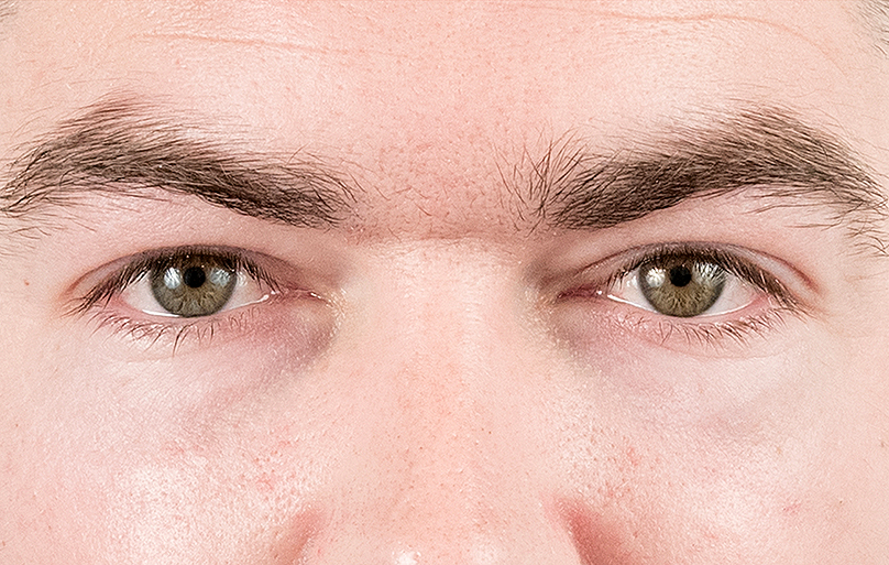 """I want to get rid of the tired look around my eyes!"" Well, come and have this revolutionary eyebag treatment!"