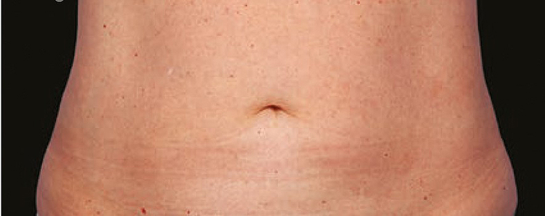 CoolSculpting sl. 3, poslije