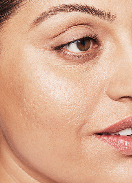 Skin Rejuvenation (Restylane Vital) - Non-Surgical Treatments