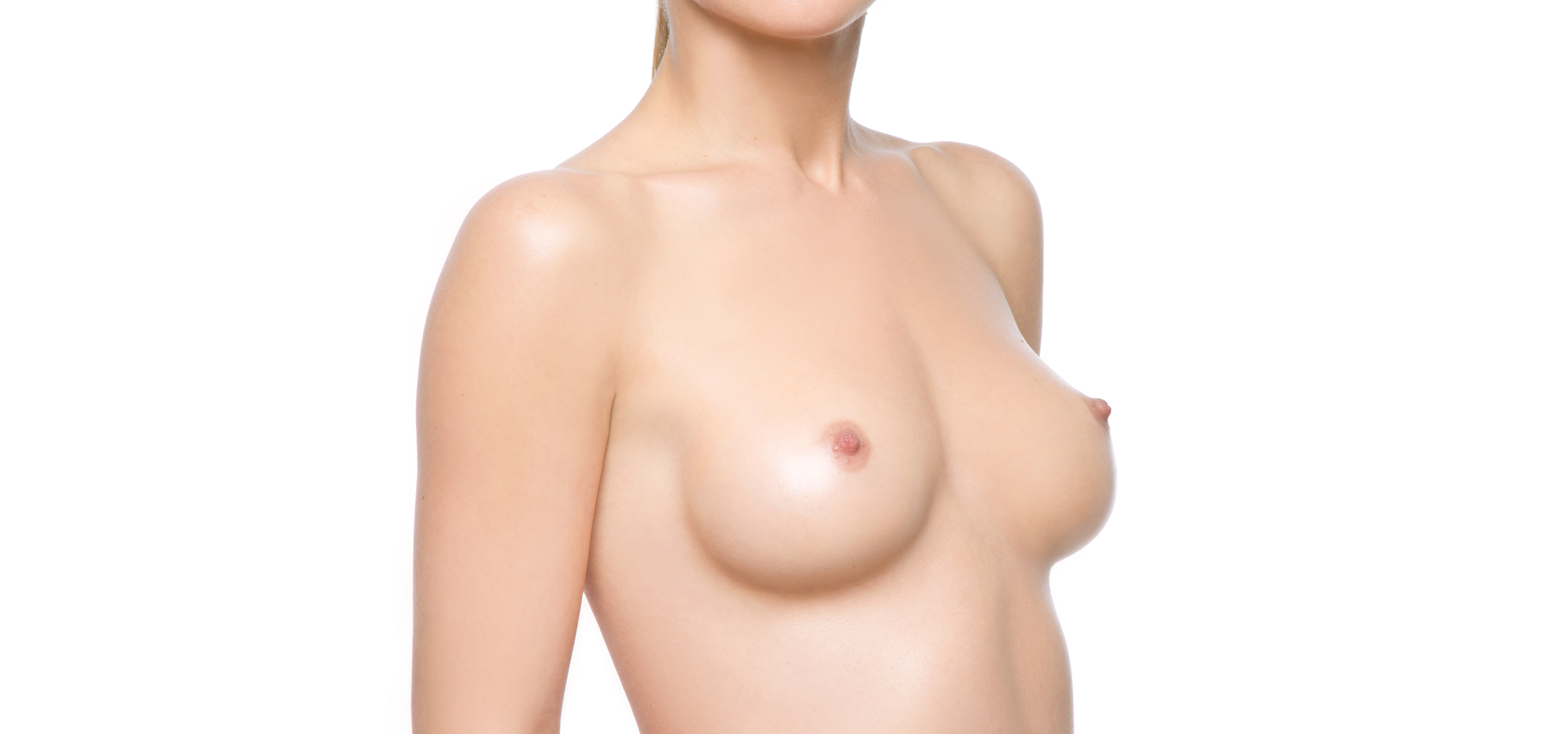 Fat transfer into the breasts using Vaser Lipo technology